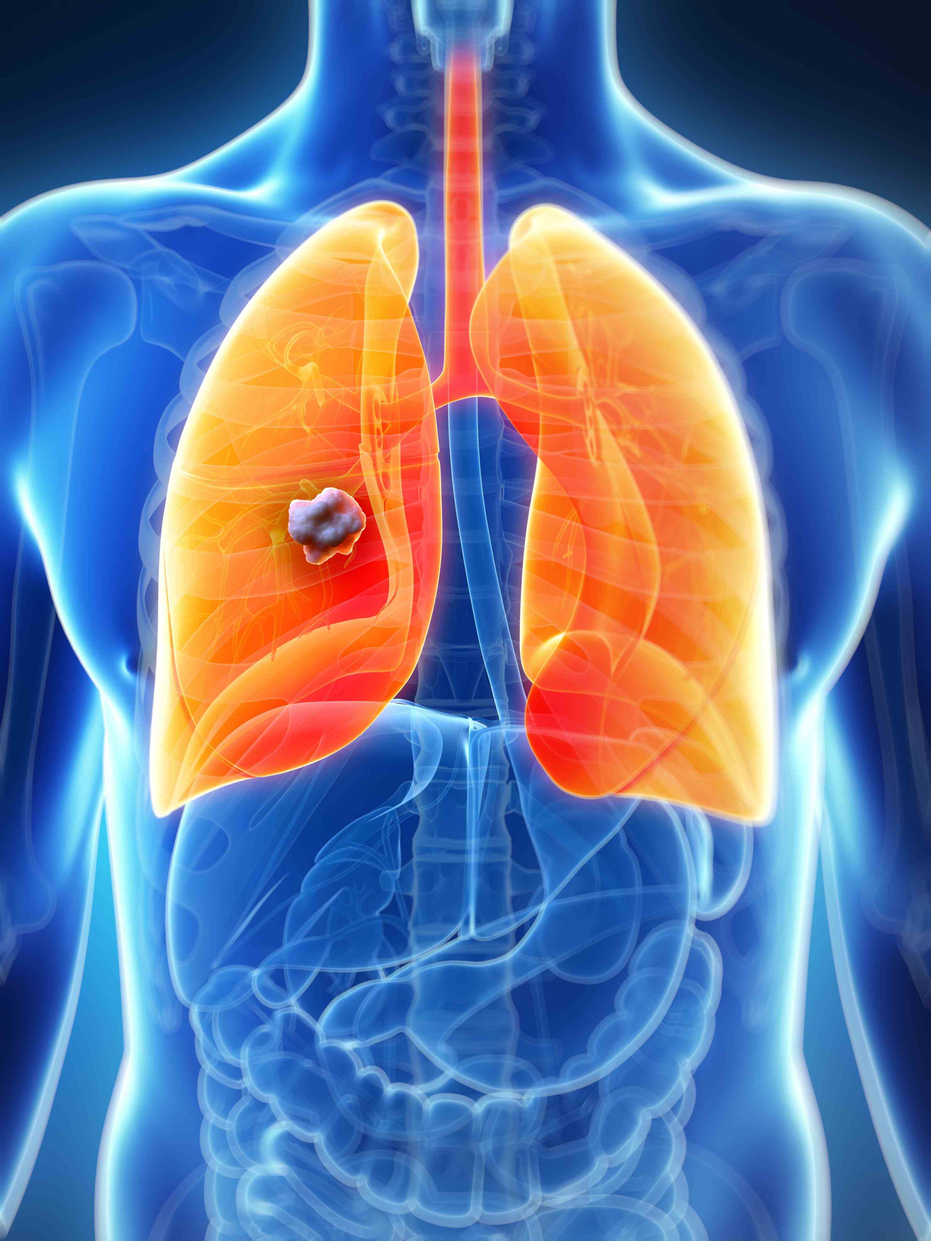 lung Cancer On The Lung cancer is one of