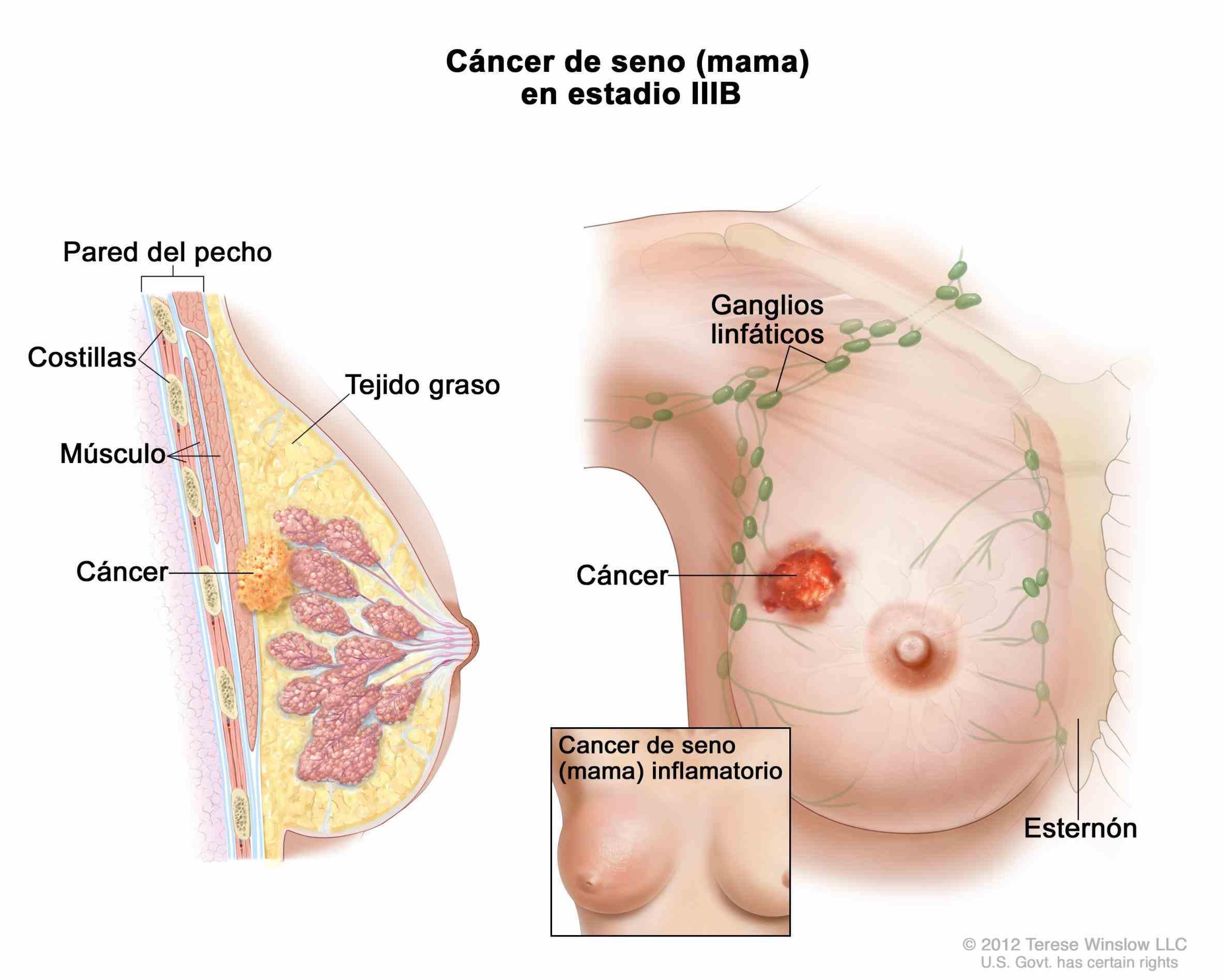 mama se origina cuando las células en comienzan a