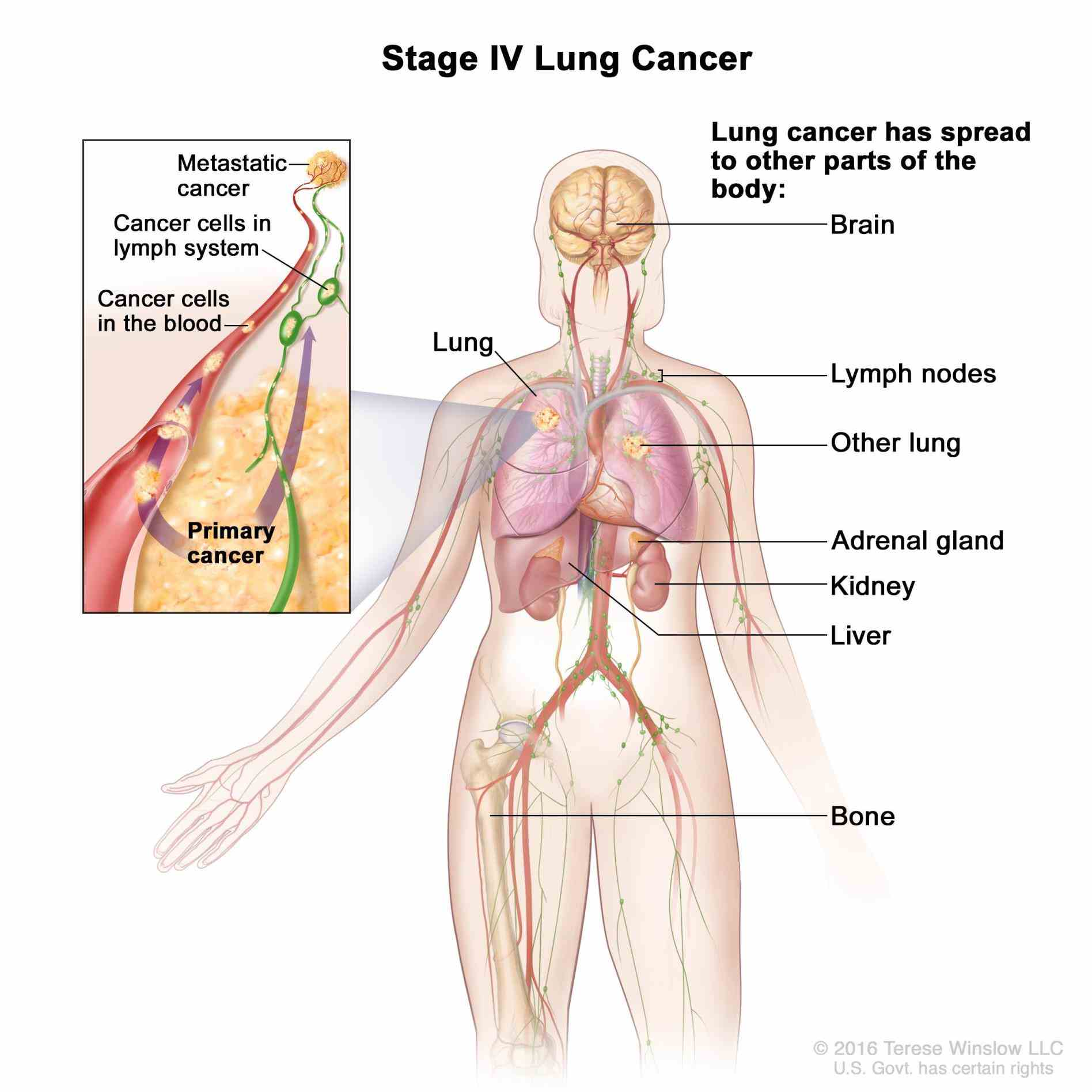 nsclc are based mainly on as with other stages