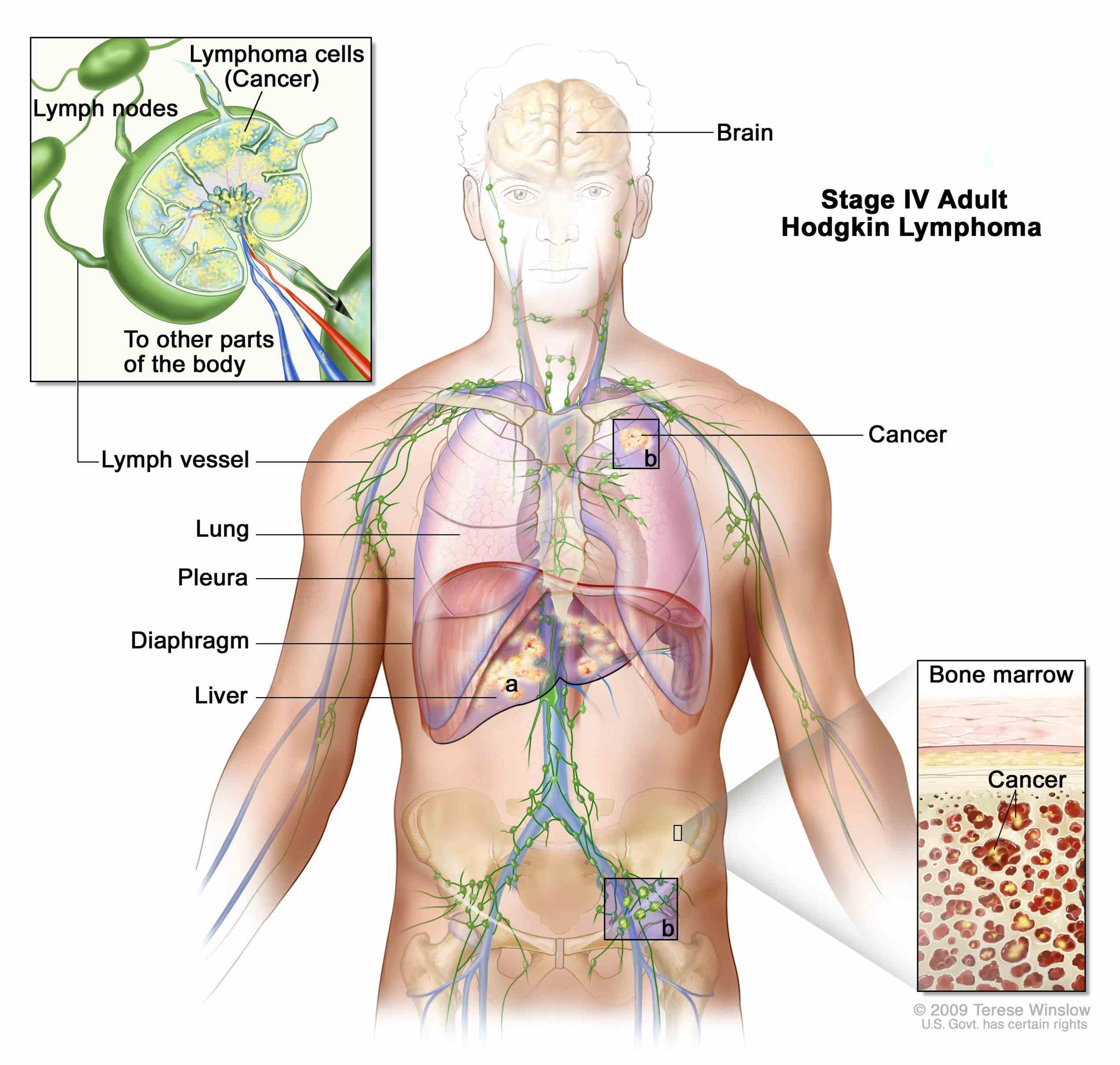 stage iv depends a if Stage 4 Cancer Lung