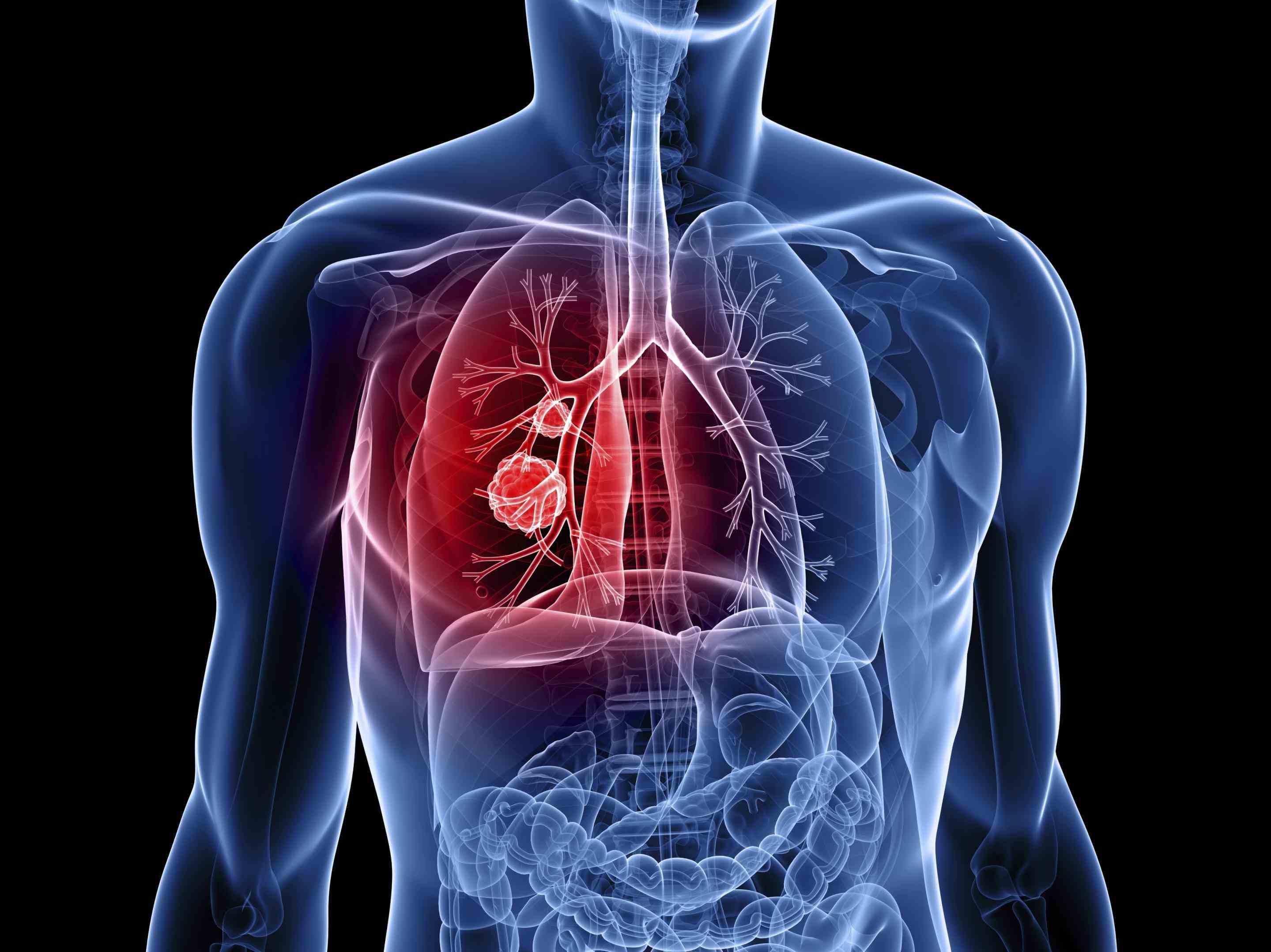 there Cancer In The Lungs are two main