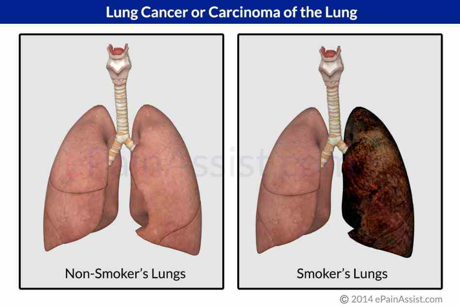 there Cancer On The Lung are two main