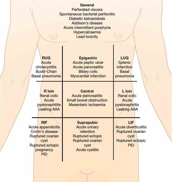 severity Picture Of Abdominal Quadrants of abdominal pain does not always correlate with an underlying disorder constipation or