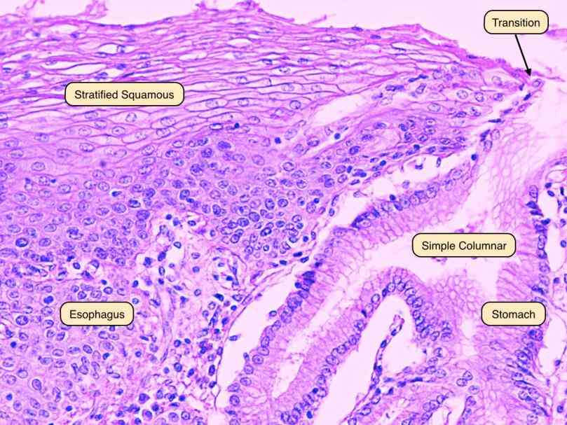 the Epithelium Of The Esophagus esophagus american english or oesophagus british commonly known as epithelium of has a