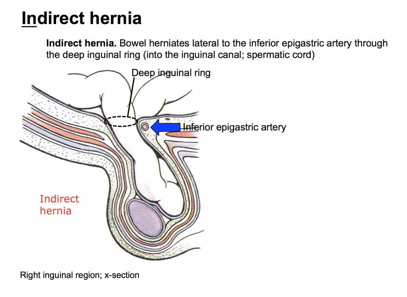 the inguinal canal has an oblique course is cm in length and two openings deep ring a round opening