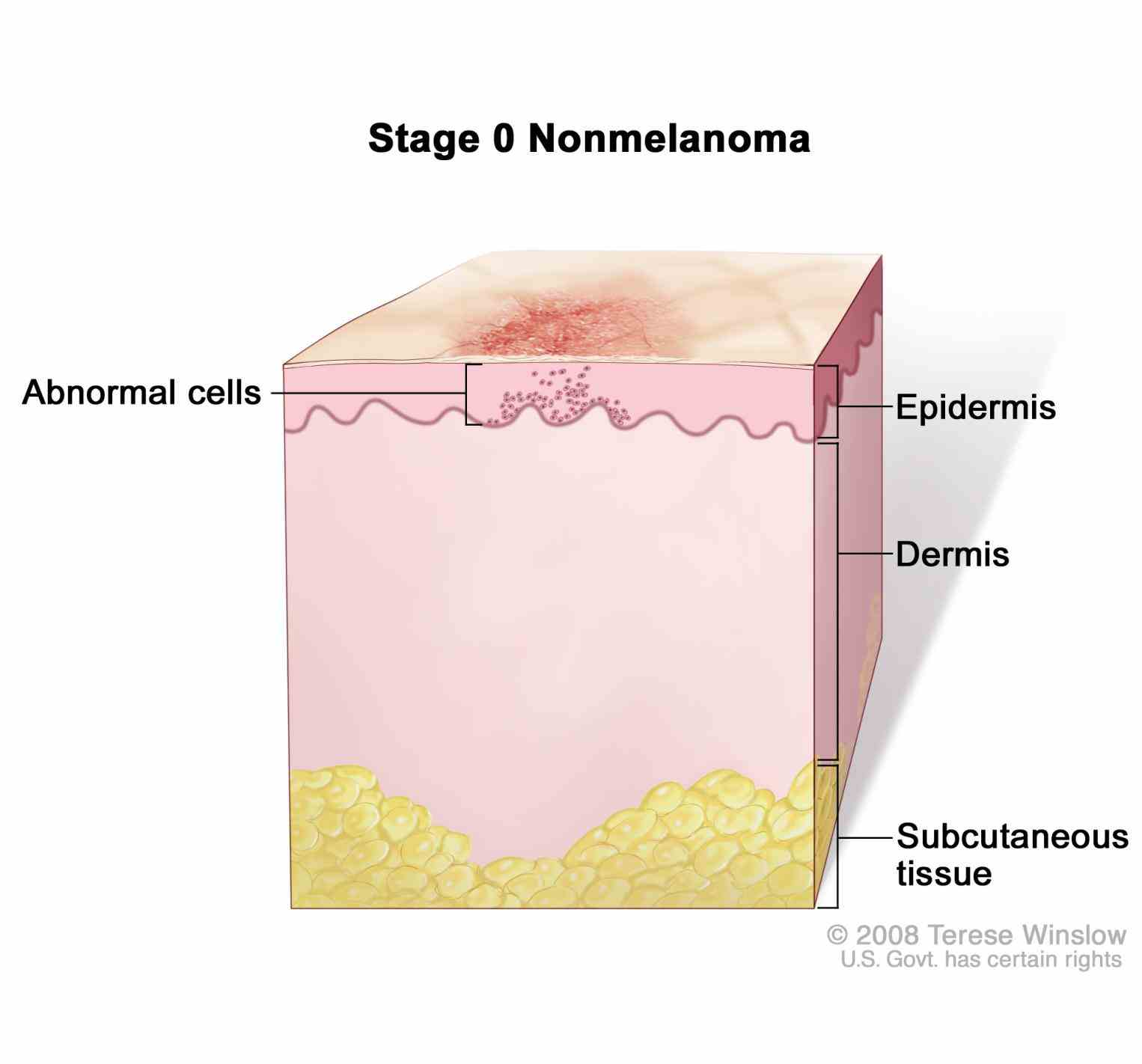 to life outer layers are shed and replaced by inner skin slide Anatomy The Tissue In The Outer Layer