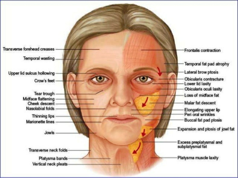 Facelift Surgery Pictures Wallpapers