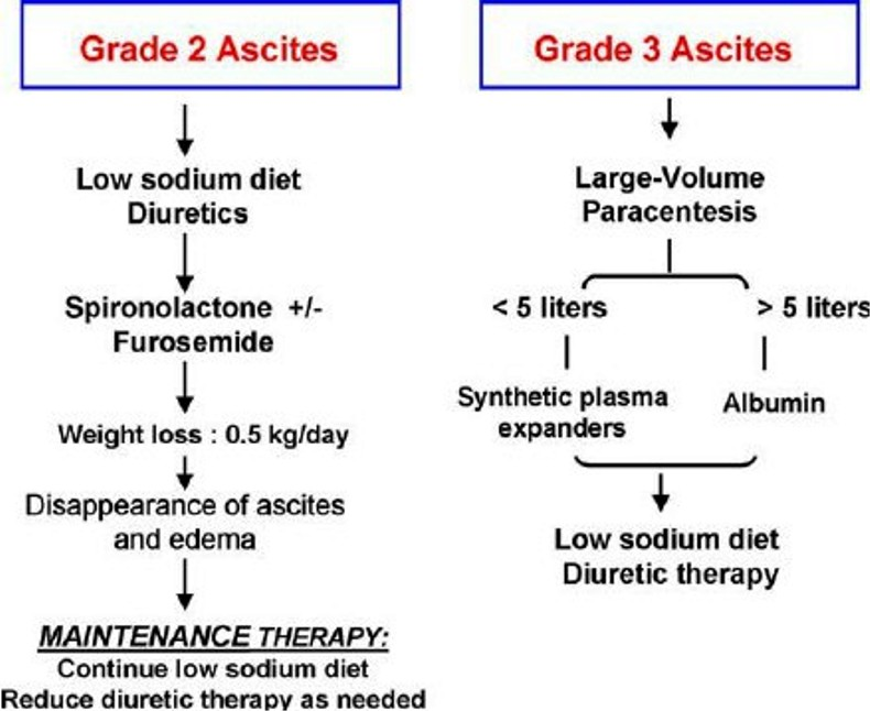 Treatment strategies for Grade 2 and 3 ascites Pictures Wallpapers